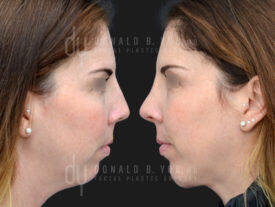 SURGICAL :: RHINOPLASTY<br>Rhinoplasty and Chin Augmentation