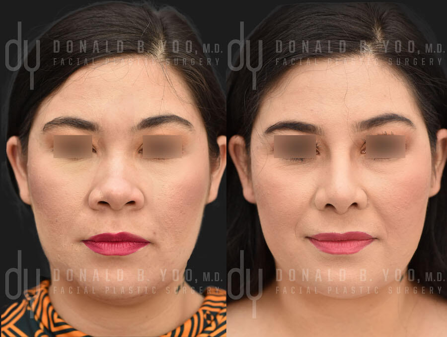 SURGICAL :: RHINOPLASTY<br>Primary Rhinoplasty and Submental Liposuction