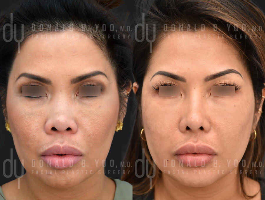 SURGICAL :: RHINOPLASTY<br>Primary Asian Rhinoplasty with Rib Cartilage and DCF