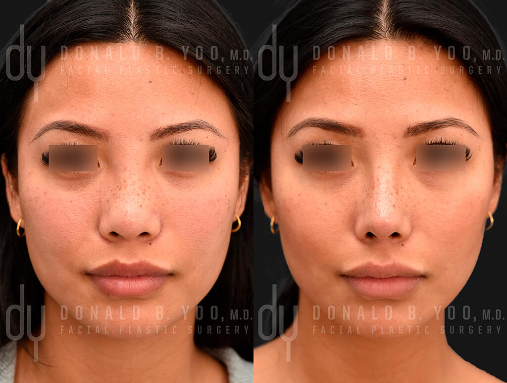 Asian nose rhinoplasty