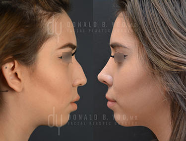 Before and After Photo of Rhinoplasty Procedure