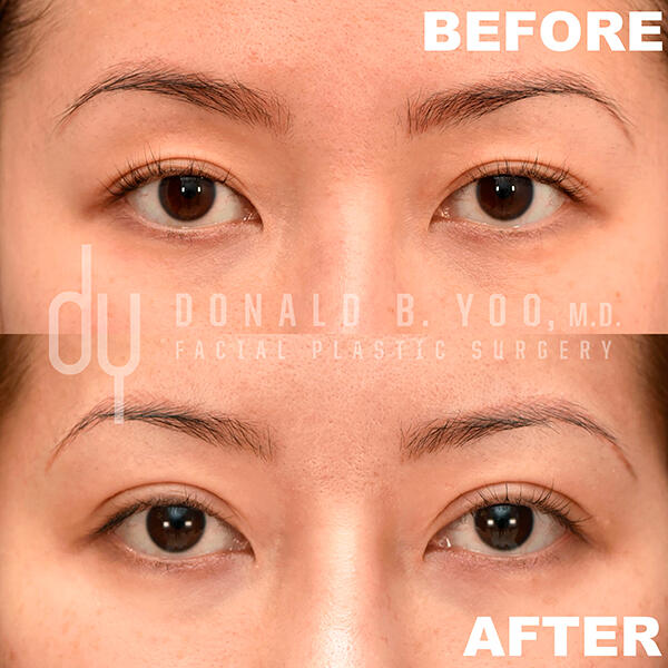 1st before and after photo of Asian Blepharoplasty results