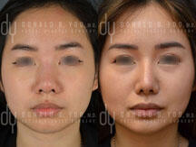 Before and After primary Asian rhinoplasty