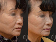 Revision Asian Rhinoplasty with rib cartilage and DCF