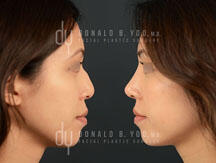 Surgical Asian rhinoplasty with rib cartilage