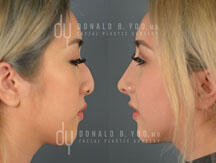 Before and After Asian Rhinoplasty