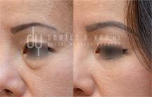 Lower Blepharoplasty surgical procedure (before and after)