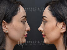 Rhinoplasty surgical procedure (before and after)