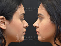 Before and after surgical Rhinoplasty